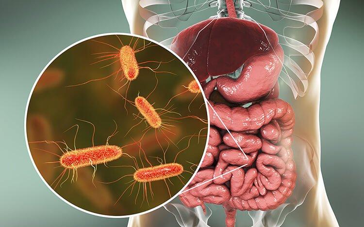 Người nhiễm E. coli