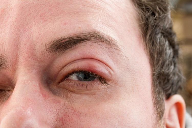 Đau mắt hột nên kiêng gì?