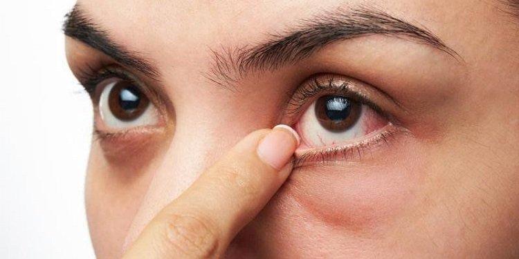 Vệ sinh kém là nguyên nhân gây đau mắt hột