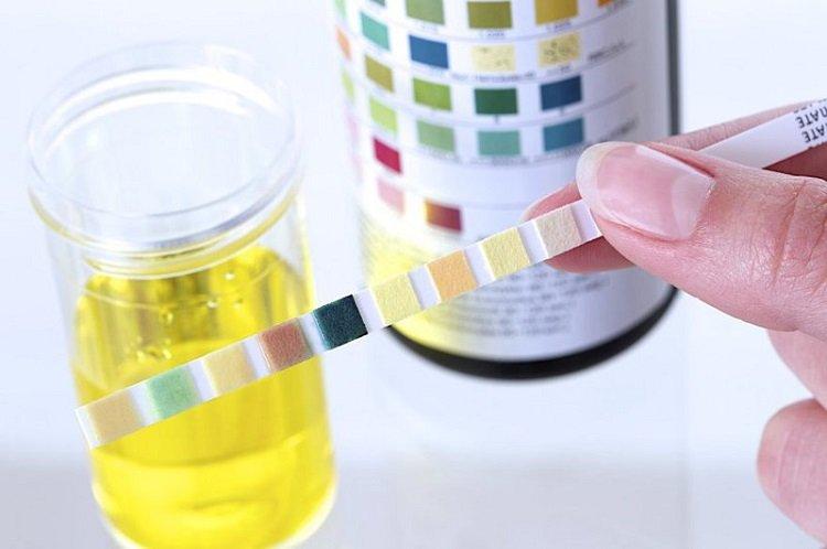 Minh họa đo độ pH nước tiểu