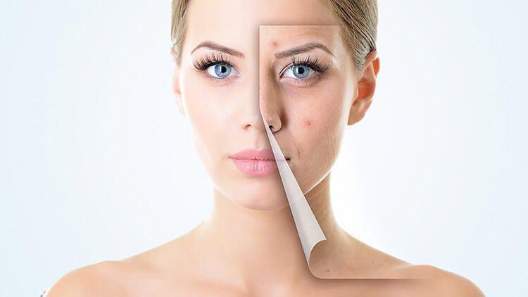 Tác hại của ô nhiễm không khí lên da và cách phòng tránh