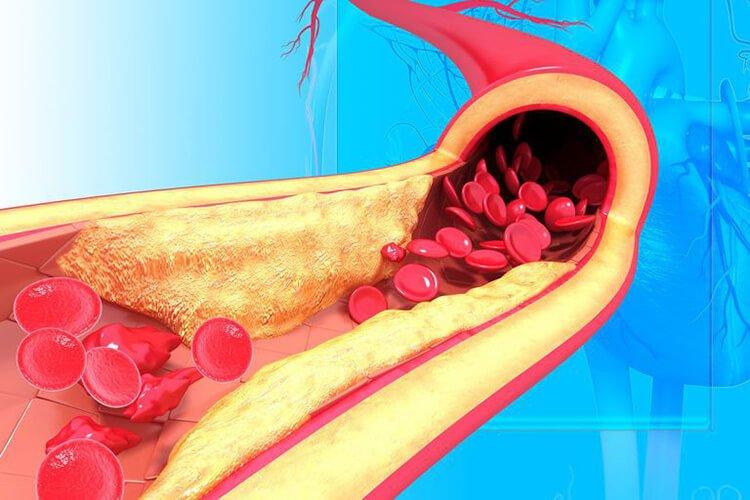 Giảm cholesterol có hại