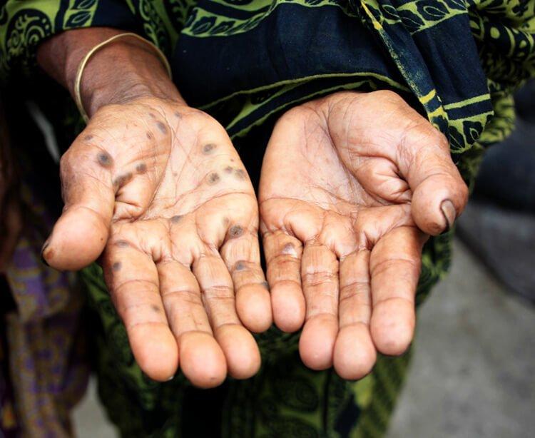 Ảnh hưởng của thạch tín lên da